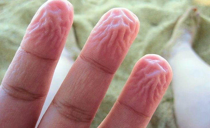 Dita da vecchi: perché le dita raggrinziscono
