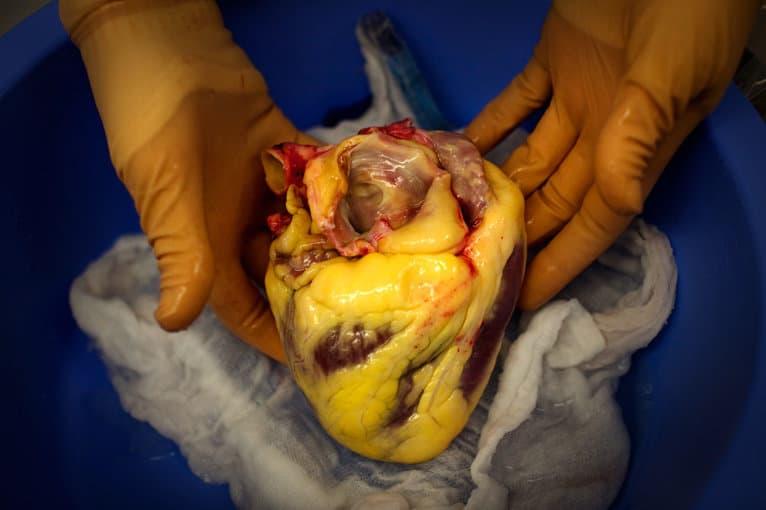Cuore di un soggetto obeso, dislipidemico: quasi completamente circondato da grasso, sia all'interno delle arterie coronarie, sia all'esterno