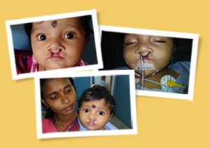 sibu before cleft surgery