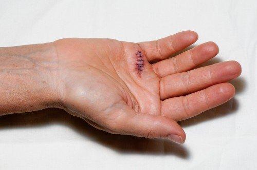 Stitches in Hand