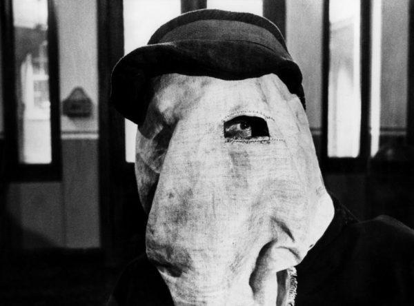 """Ο """"Άνθρωπος Ελέφαντας"""" που κυκλοφορούσε με κουκούλα για να μην τρομάζει τον κόσμο. Η ιστορία του αγοριού με το παραμορφωμένο πρόσωπο που εμφανιζόταν σε """"freak show"""". Σκληρές εικόνες"""