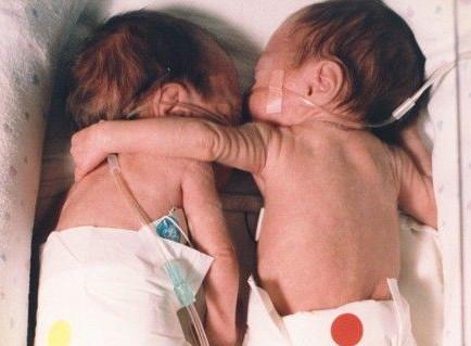Η συγκινητική ιστορία πίσω από την διάσημη φωτογραφία με τα νεογέννητα δίδυμα. Πως η αγκαλιά της μιας αδελφής έσωσε την άλλη. Δείτε πως είναι σήμερα