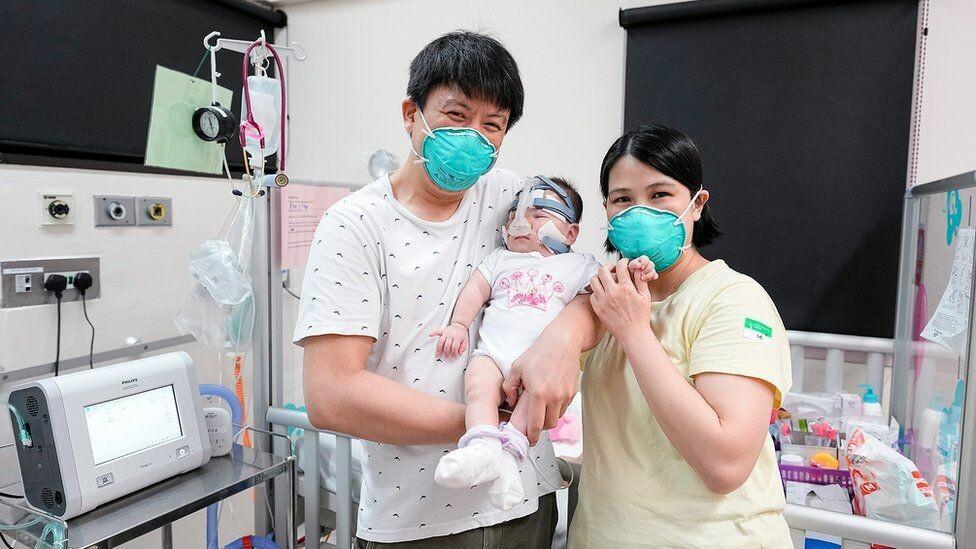 """""""Μωρό – θαύμα"""" γεννήθηκε μόλις 212 γραμμάρια και βγήκε από τη ΜΕΘ ύστερα από 13 μήνες 6 κιλά!"""