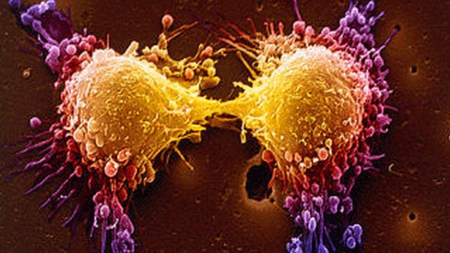 cancer si tehnologia moderna