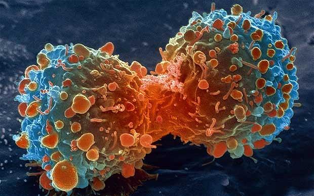 cancerul ,una din bolile vindecabile