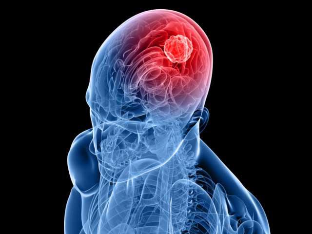creierul si cancerul