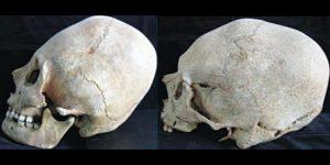Craniile alungite de la Pogorasti