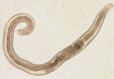 Owsik ludzki - Enterobius vermicularis zdjęcie: http://pasozyty.org.pl/owsik.php