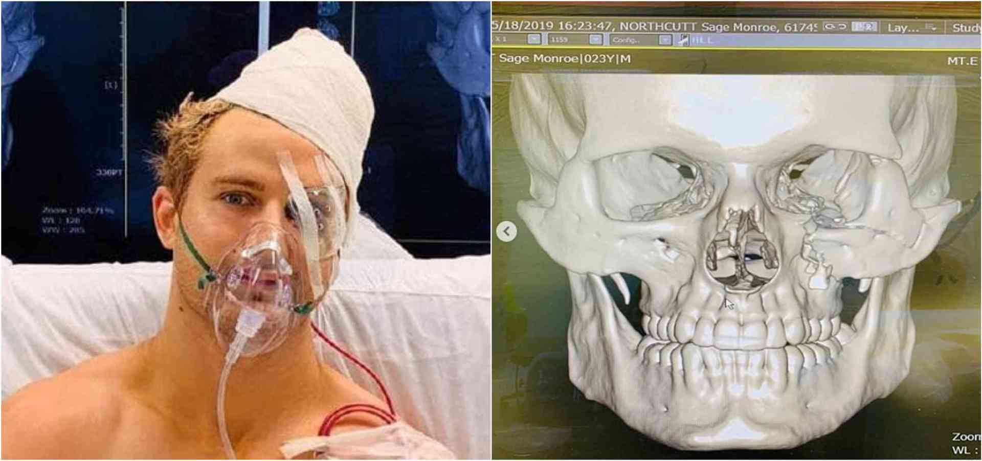 Sage Northcutt undergoes 9 hour surgery for multiple facial fractures - Northcutt