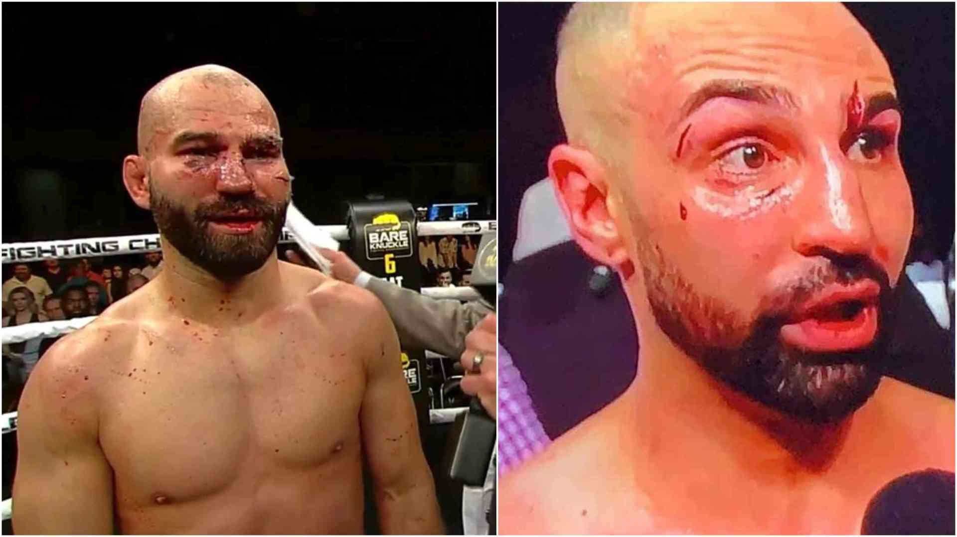 Here's how the internet reacted to Paulie Malignaggi losing to Artem Lobov at BKFC 6 - Artem