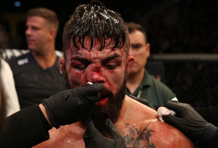 Mike Perry reveals that doctors stuck metal rods up his nose after gruesome UFC Uruguay injury - Perry