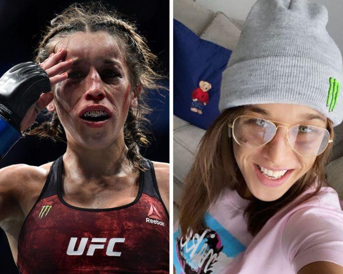 UFC News: Joanna Jedrzejczyk's face healing up nicely after UFC 248 war against Weili Zhang! - Joanna Jedrzejczyk