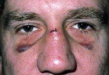 De ce nu este bine să-ți sufli nasul după ce ai fost lovit în el (VIDEO)