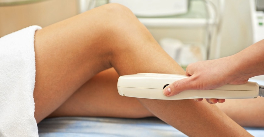 laser hair removal calgary
