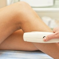 How the Laser Hair Process Removal Works