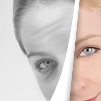 The Benefits of Photo Facials
