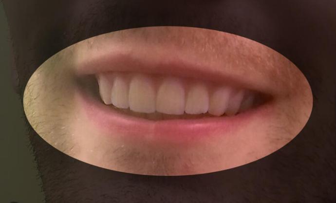 3D Druck Zahnschiene Nachher