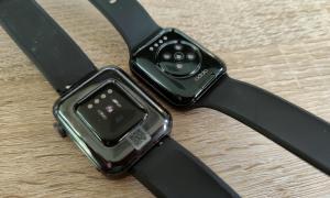 Oppo Watch 41mm Und Xiaomi Watch Unterseite