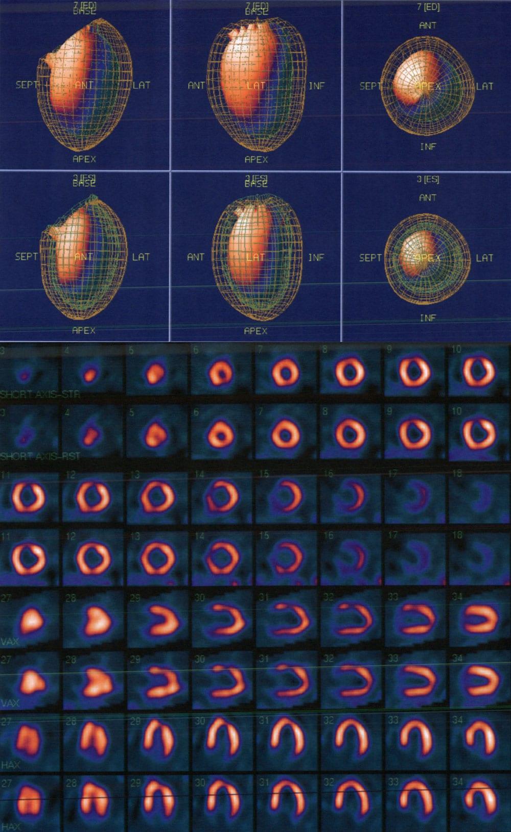Mobile Cardiac Imaging case study