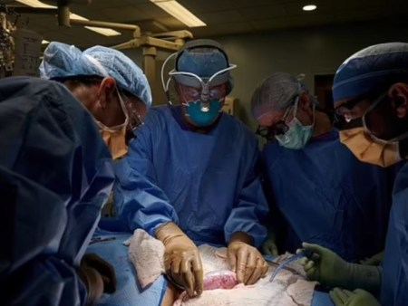 World's First Pig Kidney Transplant Into Human Successfully Completed in newyork | सूअर की ...
