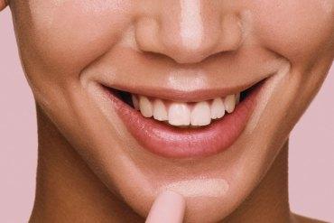 Cómo conseguir una sonrisa perfecta