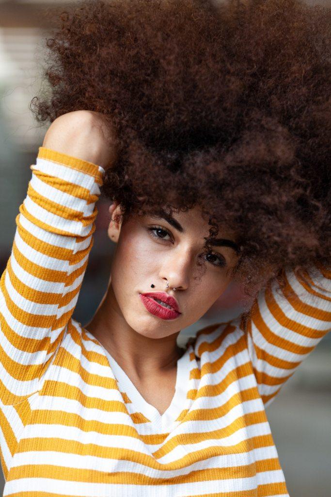 alopecia, hair loss