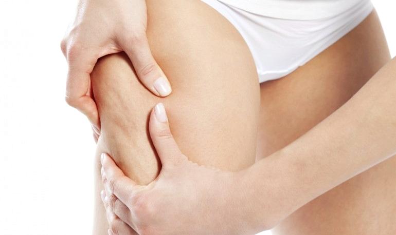 Антицеллюлитный массаж в домашних условиях- 3 простых способа