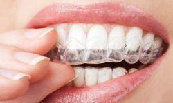Welche Möglichkeiten der Zahnaufhellung für Zuhause gibt es?