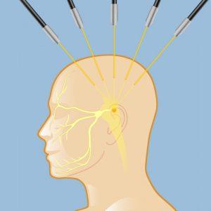 radiation-for-trigeminal-neuralgia-lg