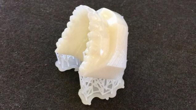 Impression 3D résine HD d'un scan dentaire