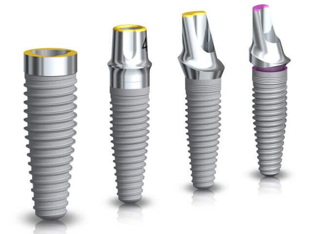Announcing Noble Biocare Implant Options