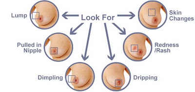 breast-self-exam-5 Image