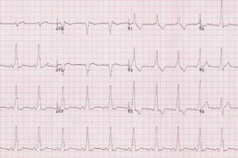 wpw-sindrom-kod-dece-873.jpg
