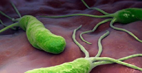 جرثومة المعدة الحلزونية واعراضها وعلاجها
