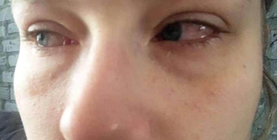 Hooikoorts ogen