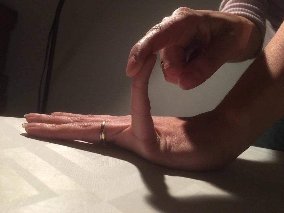 hypermobiliteit, hypermobiel