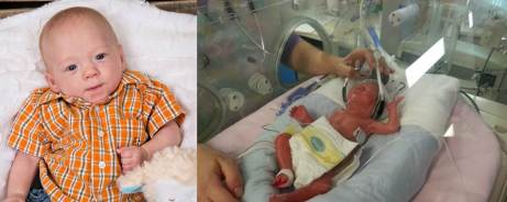 Level III NICU preemie