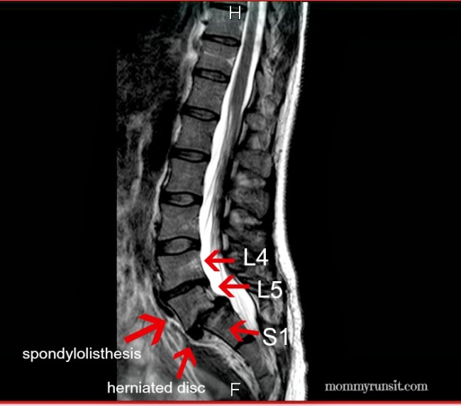 Q+A: Spondylolisthesis, Spinal Fusion, and More   Mommy Runs It