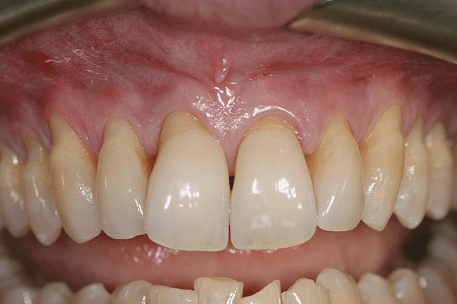 Gum Graft Procedure In Montreal Gingival Regeneration