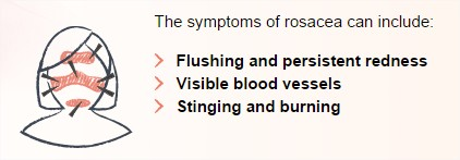 Most common Rosacea triggers - Act on Red - Google Chrome_2