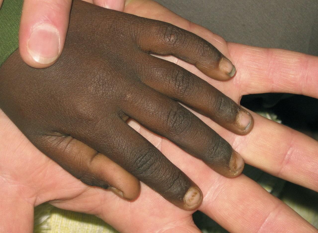 bianco nero mano