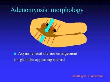 adenomiosi diagnosi