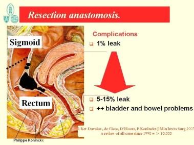 endometriosi pronda : evitare resezione bassa