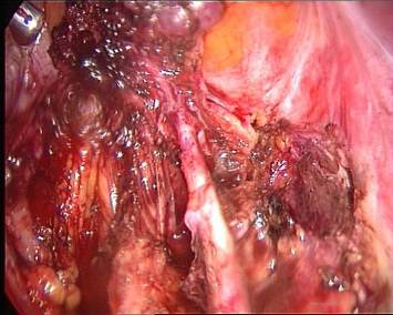 enendometriosi : ovarian remnant