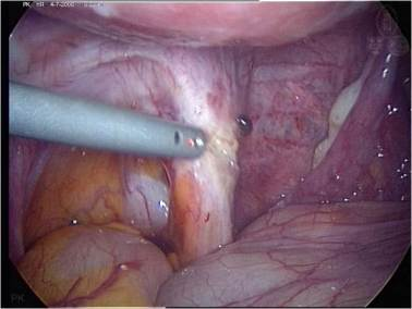 endometriosi typica grande