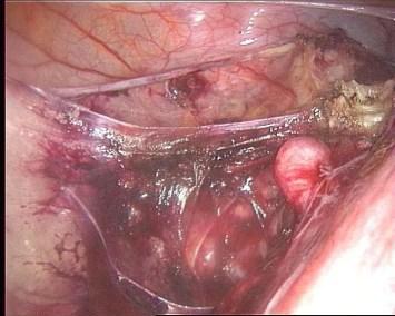 isterectomia : 3 arteria uterina