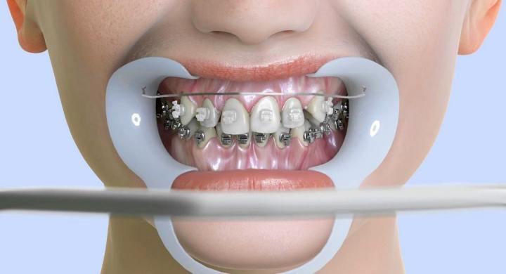 dental costs
