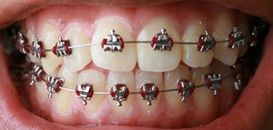 moneymagpie_Free dental care_dental-braces
