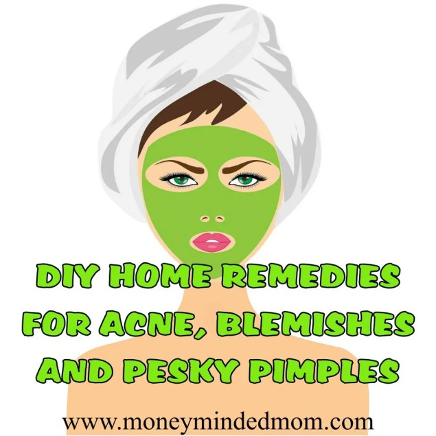 DIY Home Remedies for Acne