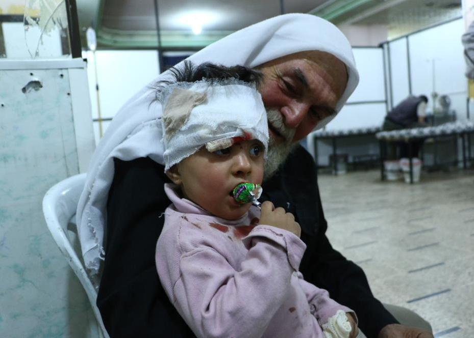 DAMASCO, SIRIA - 3 de octubre: Un niño sirio se ve después de haber recibido tratamiento médico después de la artesanía de la guerra pertenecientes al Ejército sirio llevó a cabo una huelga por más de distrito de Douma Goutha del Este en Damasco, Siria, el 3 de octubre de 2016. (Hamza Adnan - Agencia Anadolu)